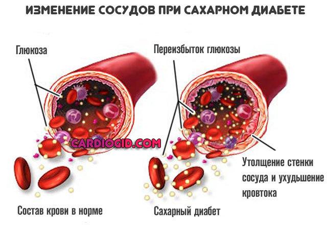 Повышенное содержание мочевины в крови: причины и возможные заболевания
