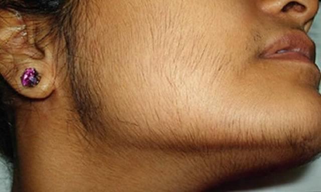Тестостерон у женщин повышен: как снизить уровень гормона народными средствами
