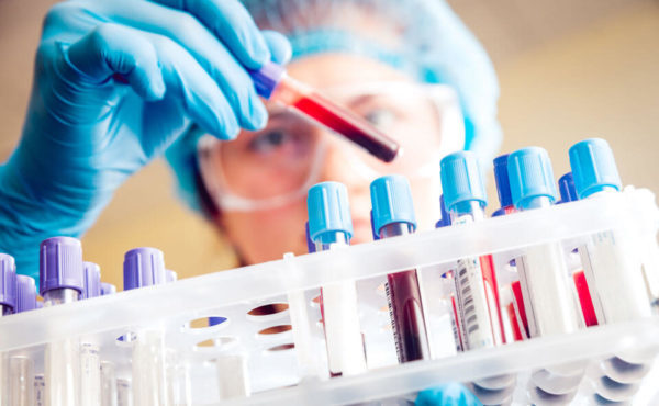 Раково-эмбриональный антиген: норма, причины и опасность повышения показателя