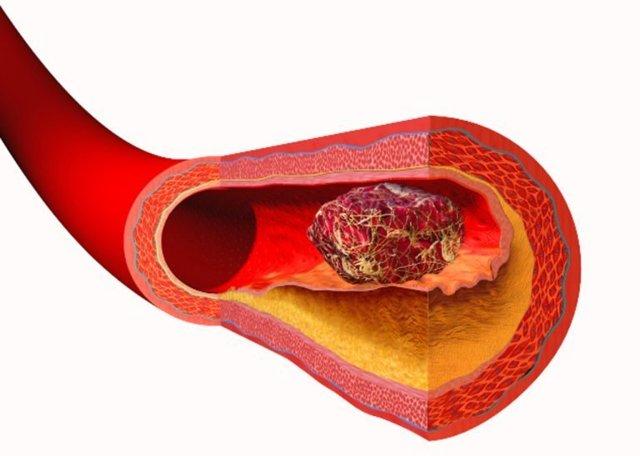 Что делать, если кровь в кале? Диагностика, лечение и возможные осложнения