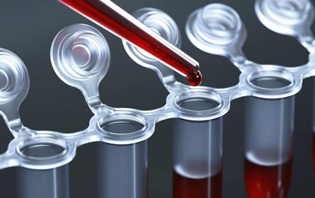 Норма АСТ в анализе крови и основные причины отклонения фермента