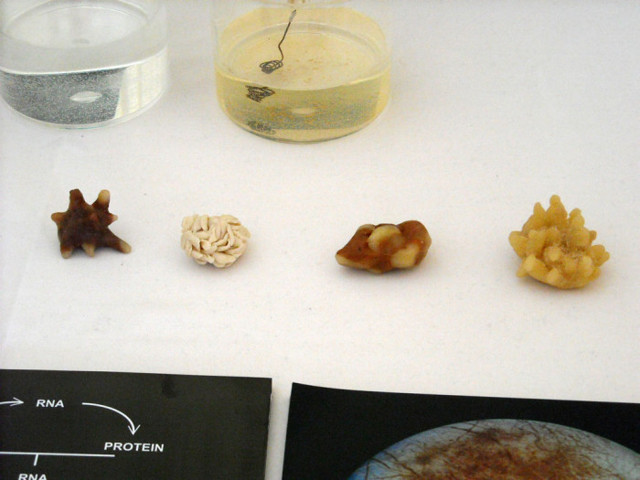 Анализ почечных камней — определение причины камнеобразования