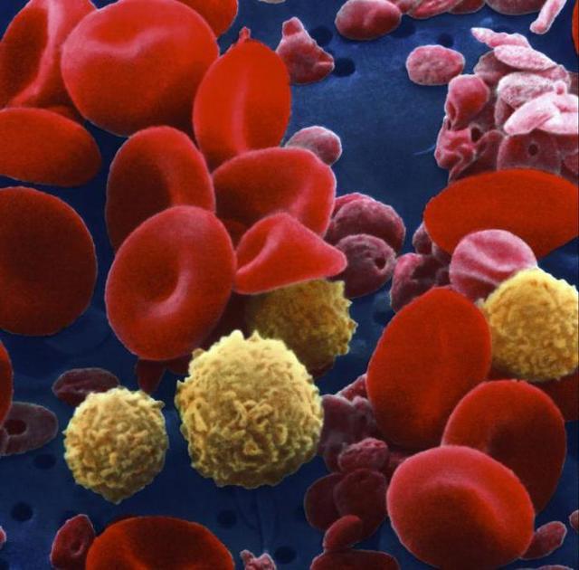 Группа крови и резус-фактор: совместимость родителей и опасность резус-конфликта