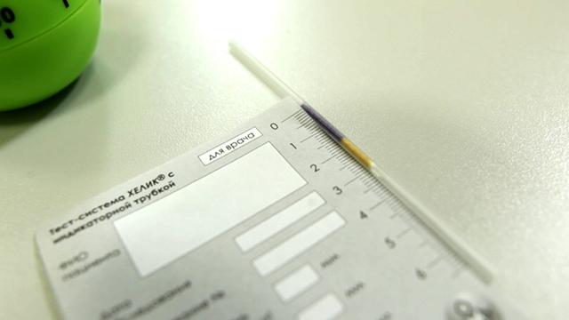 Хеликобактер-тест: описание, подготовка и методика