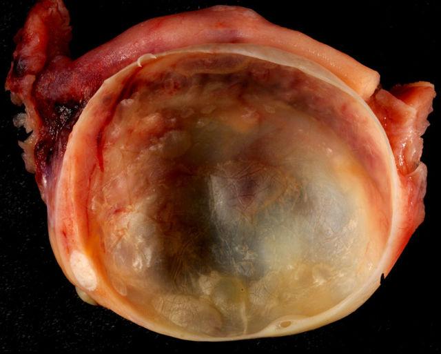 Что это такое киста? Причины возникновения, виды, диагностика и методика лечения