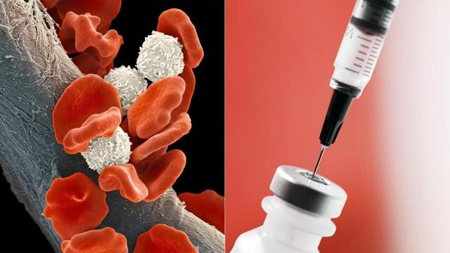 В-клеточный хронический лимфолейкоз: диагностика и методика лечения