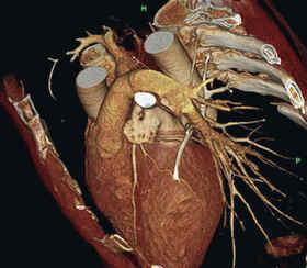 ЭХО-обследование сердца и головного мозга:  назначение, процедура и противопоказания
