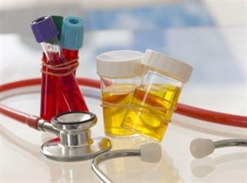 Причины, признаки и методы лечения диабетической нефропатии