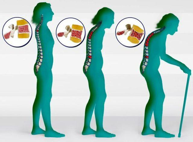Анализ крови на кальцитонин — назначение, нормы и подготовка
