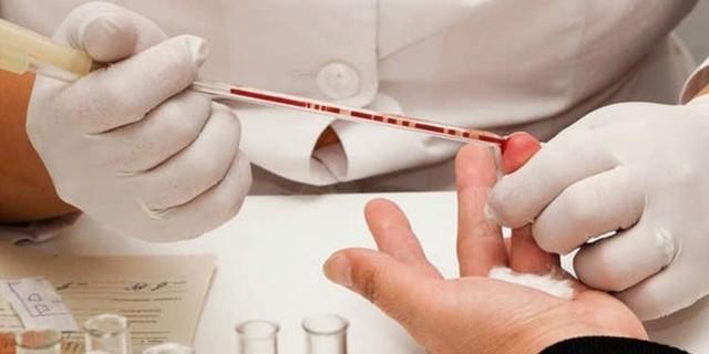Что входит в общий анализ крови - расшифровка: норма показателей и причины отклонения