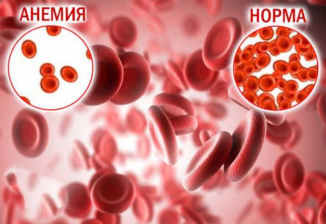 Причины и опасность повышенного гемоглобина в крови