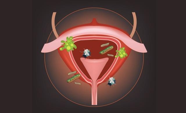 Признаки микоплазмоза при беременности, диагностика, лечение и возможные осложнения