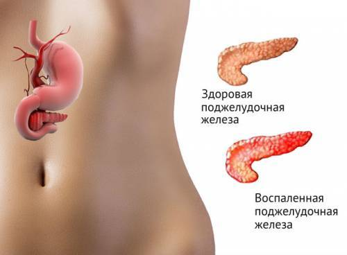 Диастаза крови - значение фермента, диагностика и расшифровка анализа