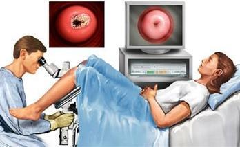Чем опасен железисто-фиброзный полип эндометрия и как его лечить?