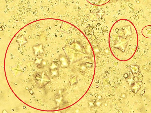 Норма лейкоцитов и эритроцитов в моче, причины отклонений и возможные заболевания
