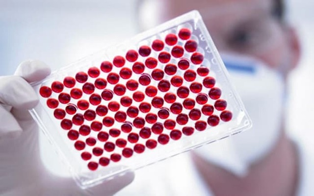 Анализ крови на СОЭ: расшифровка, норма, причины повышения показателя и лечение