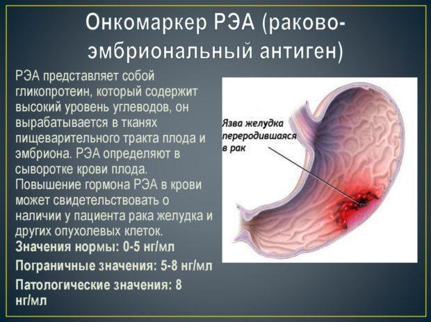 Анализ крови на РЭА: норма и причины отклонения