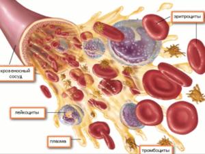 Почему повышены лейкоциты в крови — причины и лечение лейкоцитоза