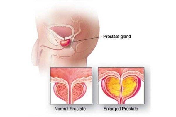 Размер простаты: норма, способы диагностики и заболевания предстательной железы