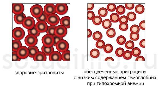 Признаки гиперхромной анемии, виды, диагностика, лечение и возможные последствия