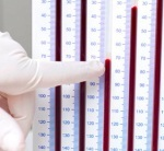Высокое СОЭ в крови: основные причины, методы диагностики и последствия