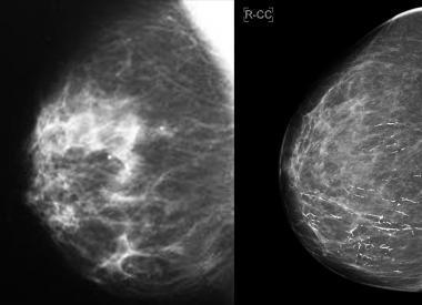 Нейрон специфическая энолаза (nse), как онкомаркер