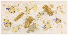 Мышечные волокна в кале - норма или патология?
