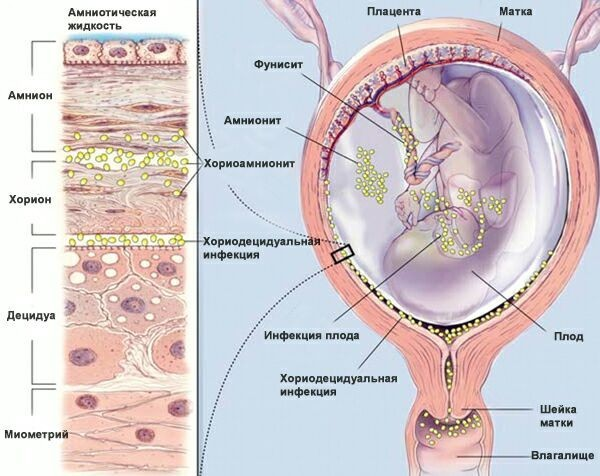 Уреаплазма парвум у женщин: основные симптомы и опасность инфекции