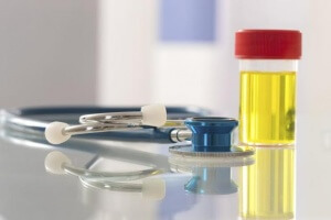 Анализ мочи - показатель leu: норма лейкоцитов, причины отклонения и возможные заболевания