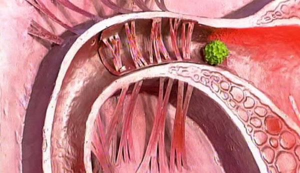 УЗИ на проходимость маточных труб: показания, процедура и возможные результаты