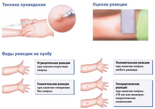 Характеристика панели респираторных и пищевых аллергенов, а также особенности развития аллергии