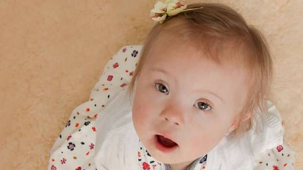 Норма ХГЧ при беременности и показатели гормона при синдроме Дауна