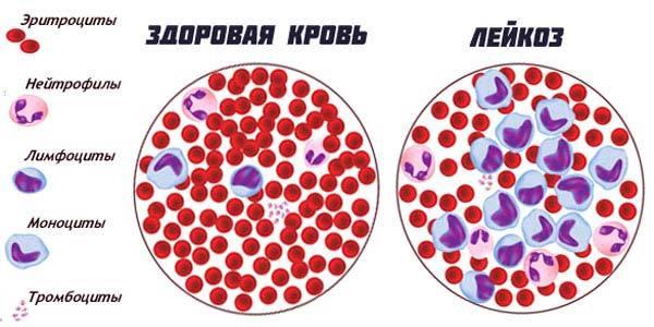 Хронический лейкоз: симптомы, классификация и опасность заболевания