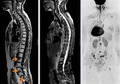 Как диагностируются и лечатся метастазы в кости