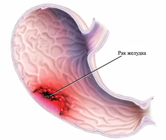 Анализ крови при раке желудка: общий, биохимический и на онкомаркеры