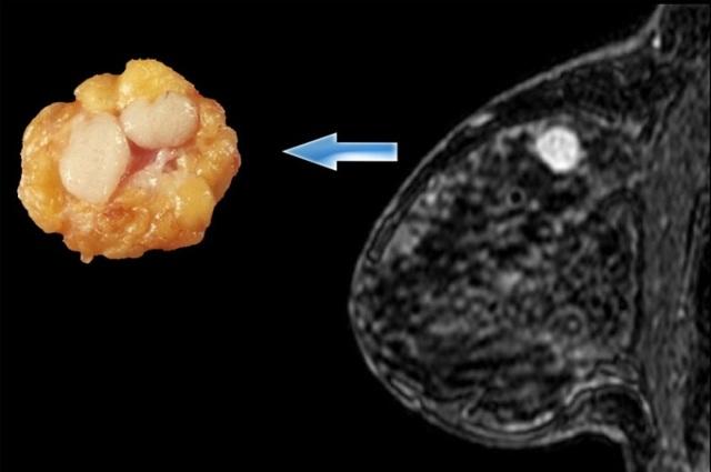 Миофиброз — это рак или нет?