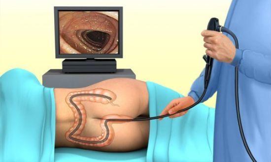 Болезни толстой кишки: симптомы и основные методы диагностики