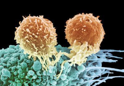 Что означают повышенные лимфоциты в крови: норма и патология