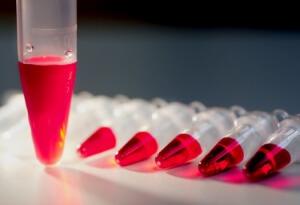 Густая кровь у новорожденного: диагностика, методы лечения и возможные осложнения