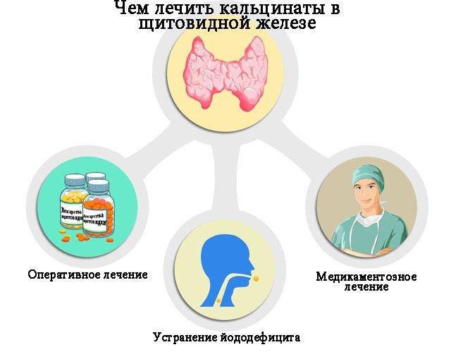 Кальцинаты в щитовидной железе: причины, признаки и методика лечения