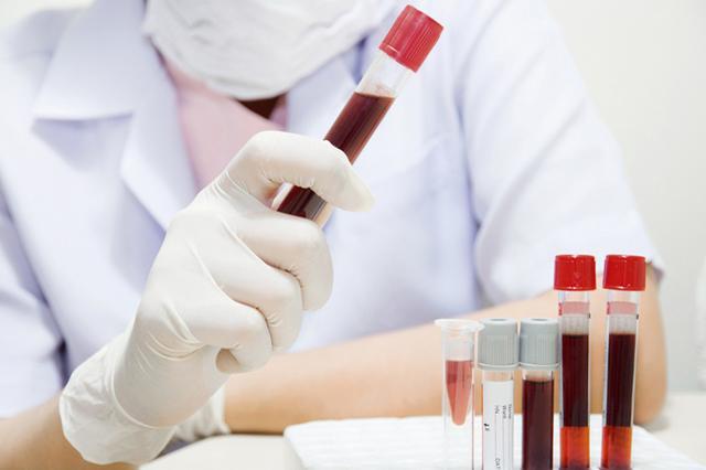 Анализы крови при артритах