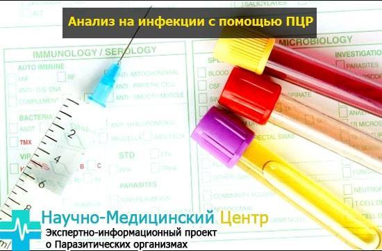 Расшифровка мазка на степень чистоты: норма и возможные заболевания