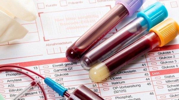 Системная склеродермия — анализы