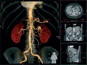 Компьютерная томография брюшной полости: подготовка, назначение и преимущества метода обследования