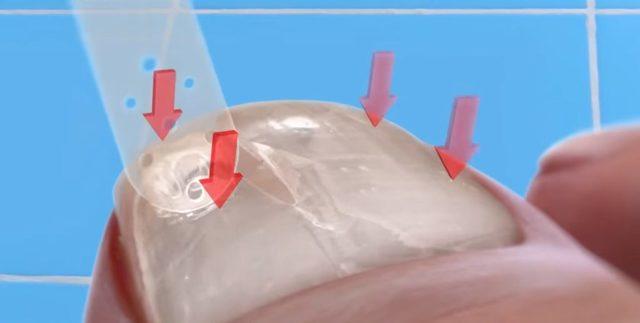 Грибок ногтей (онихомикоз) — что выбрать для лечения — лаки, мази или таблетки