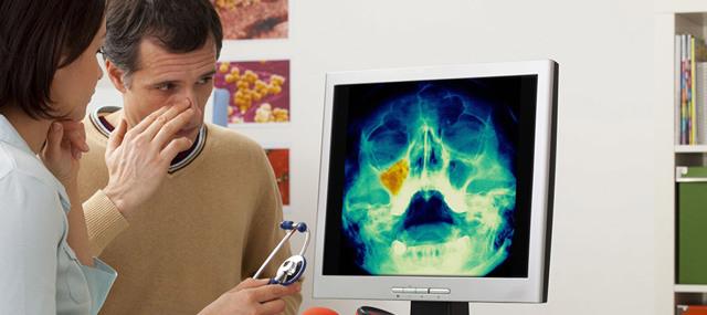 Рентген гайморовых пазух - назначение, подготовка, процедура и возможные заболевания