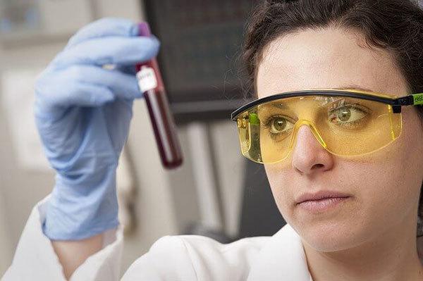 Токсокароз: расшифровка анализа на антитела к токсокарам и особенности заболевания