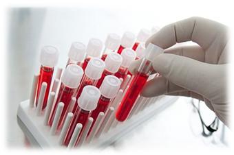 ВИЧ: что это такое — эпидемиология болезни, симптомы и профилактика