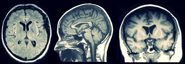 МРТ головного мозга - подготовка, процедура, возможные заболевания и противопоказания к обследованию