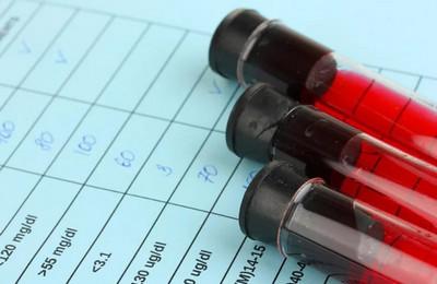 Анализ крови на онкомаркеры СА-125: описание, назначение, проведение анализа и его результаты